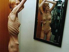 anorexic153.jpg