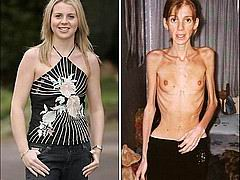 anorexic154.jpg