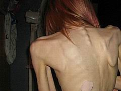 anorexic56.jpg