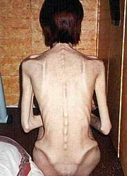 anorexic_nudes04.jpg