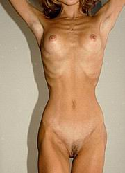 anorexic_nudes103.jpg