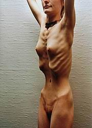 anorexic_nudes40.jpg